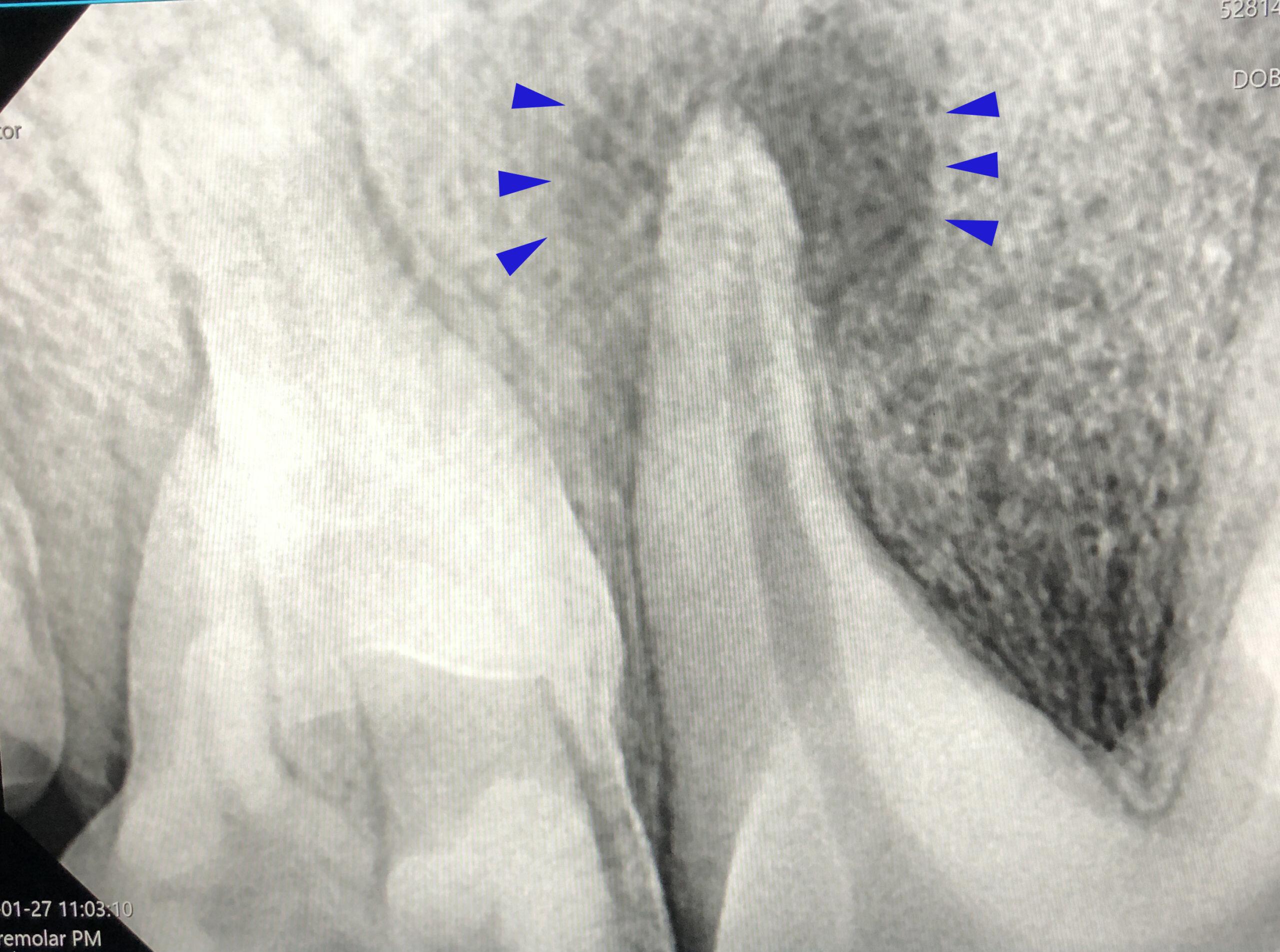 Dierenkliniek Tiel-Drumpt: dentale röntgen: een kieswortelabces