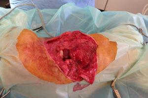 Dierenkliniek Tiel-Drumpt: De gebeten hond: De spierlaag is versnipperd en de vetlaag is moes.
